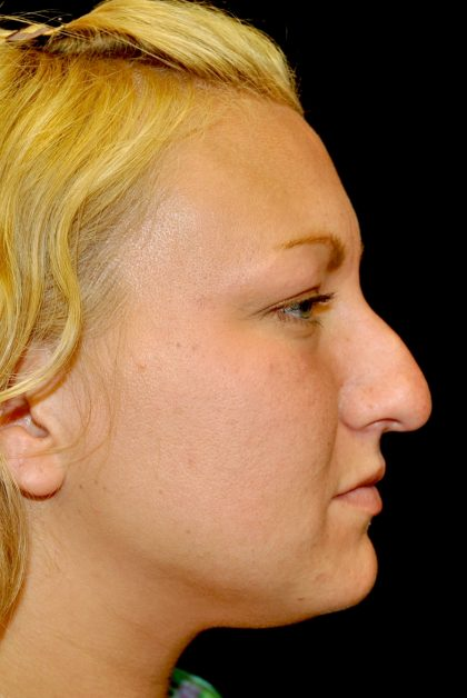 Rhinoplasty Before & After Patient #15207