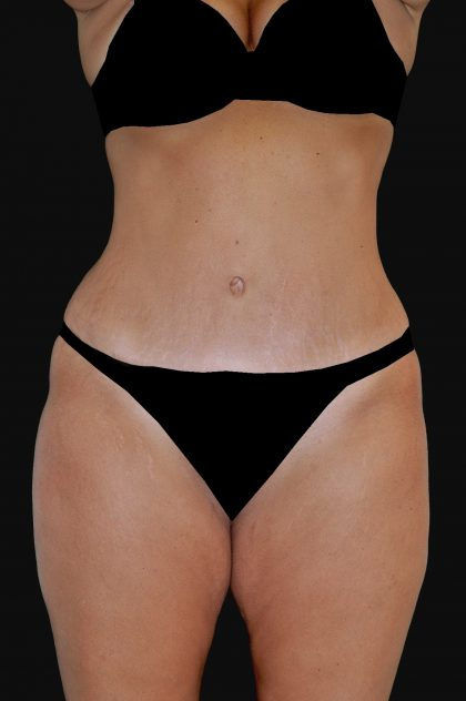 Lipoabdominoplasty Before & After Patient #15146