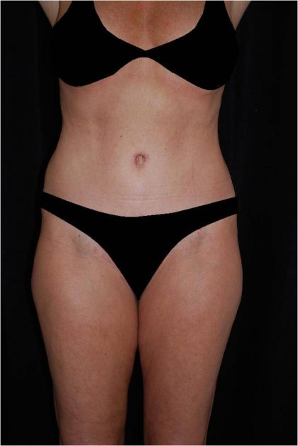 Lipoabdominoplasty Before & After Patient #15167