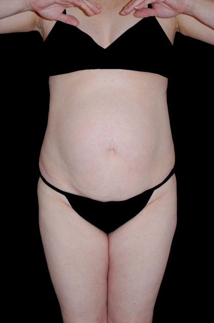 Tummy Tuck Before & After Patient #15184