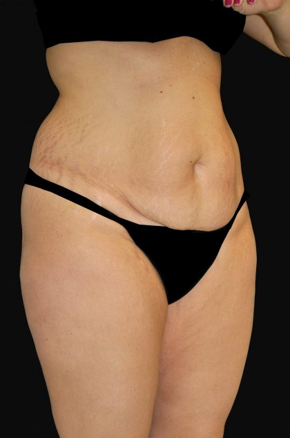 Lipoabdominoplasty Before & After Patient #15146