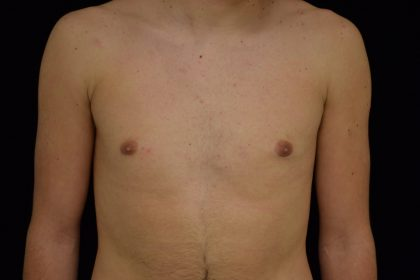 Gynecomastia Before & After Patient #14956