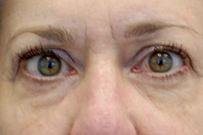 Blepharoplasty Before & After Patient #13902