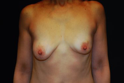 Breast Reconstructions Before & After Patient #15217