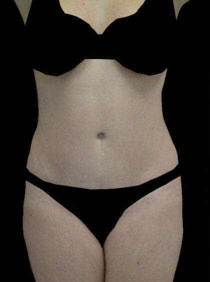 Tummy Tuck Before & After Patient #14940