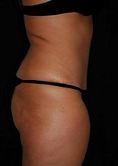 Lipoabdominoplasty Before & After Patient #15159
