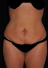Lipoabdominoplasty Before & After Patient #15159