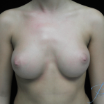 Breast Augmentation (Implants) Before & After Patient #14325