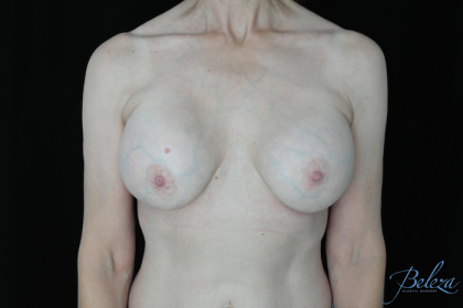 Breast Revision Before & After Patient #14656