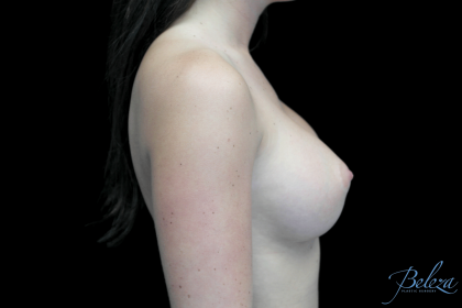 Breast Augmentation (Implants) Before & After Patient #14311