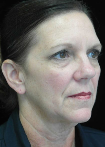 Facelift Before & After Patient #14876