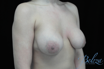 Breast Revision Before & After Patient #14699
