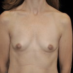 Breast Augmentation (Implants) Before & After Patient #14318