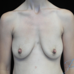 Breast Lift with Implants Before & After Patient #14485
