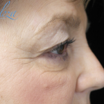 Blepharoplasty Before & After Patient #13876