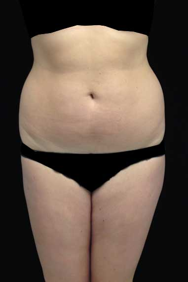 Liposuction Before & After Patient #15052