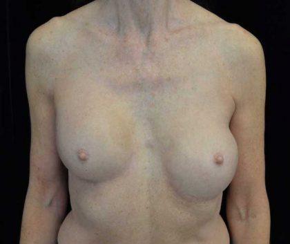 Breast Revision Before & After Patient #14719