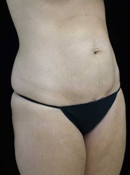 Lipoabdominoplasty Before & After Patient #15145