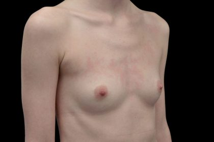 Breast Augmentation (Fat Transfer) Before & After Patient #14002