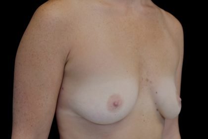 Breast Augmentation (Implants) Before & After Patient #14268