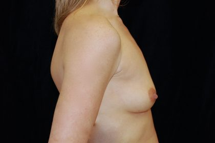 Breast Augmentation (Implants) Before & After Patient #14220