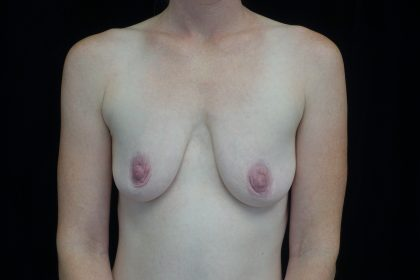 Breast Lift with Implants Before & After Patient #14539