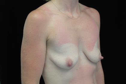 Breast Lift with Implants Before & After Patient #14521