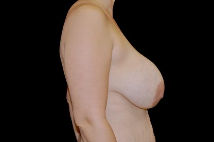 Breast Revision Before & After Patient #14685