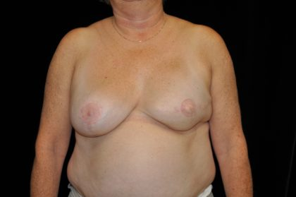 Breast Reconstructions Before & After Patient #15224