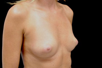 Breast Reconstructions Before & After Patient #15225