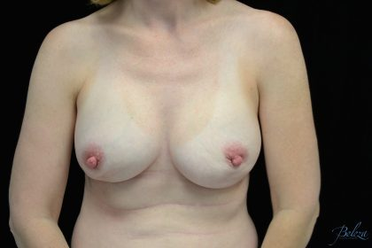 Breast Reconstructions Before & After Patient #15229