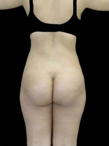 Buttock Augmentation Before & After Patient #14761