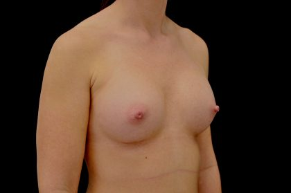 Breast Augmentation (Implants) Before & After Patient #14261