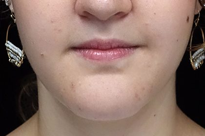 Chin Reduction Before & After Patient #14959