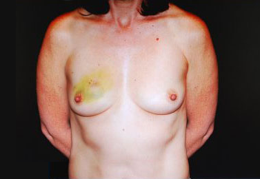 Breast Reconstructions Before & After Patient #15220