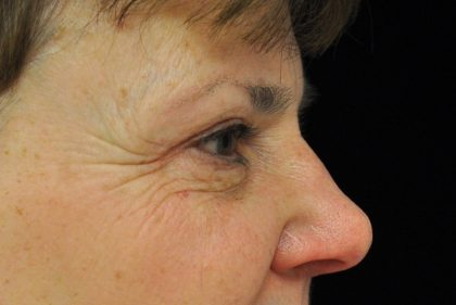Blepharoplasty Before & After Patient #13889