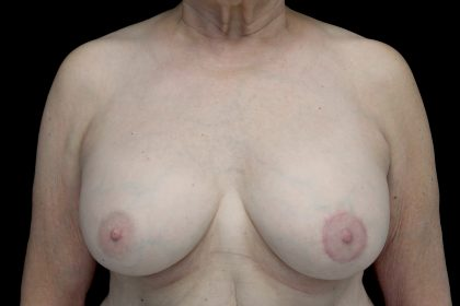Breast Augmentation (Implants) Before & After Patient #14231