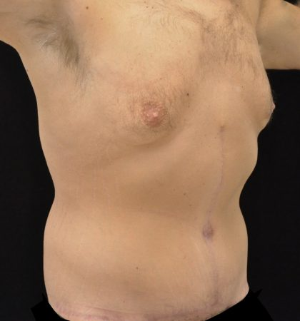 Lower Lift Before & After Patient #15316