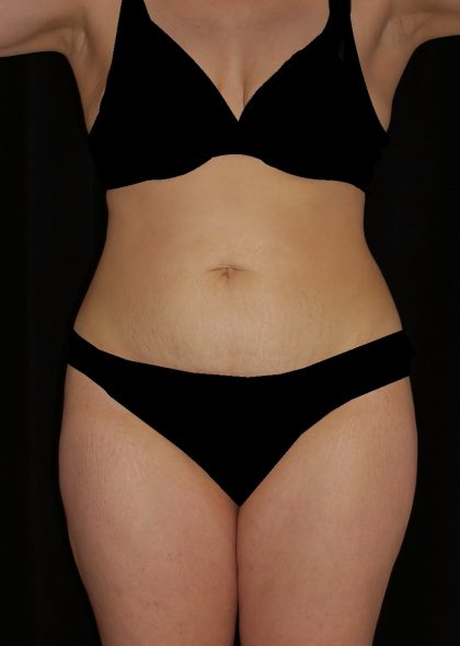Tummy Tuck Before & After Patient #15093