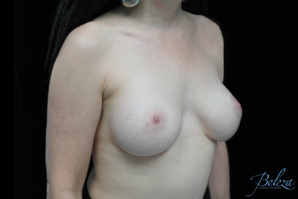 Breast Revision Before & After Patient #14692