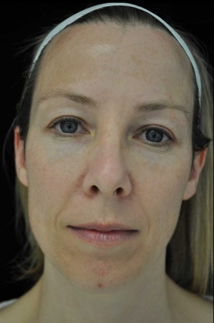 IPL Before & After Patient #14783