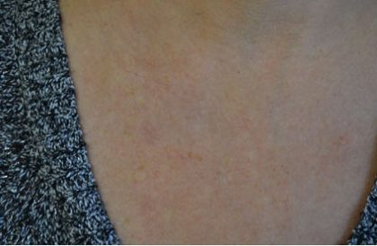 IPL Before & After Patient #14812