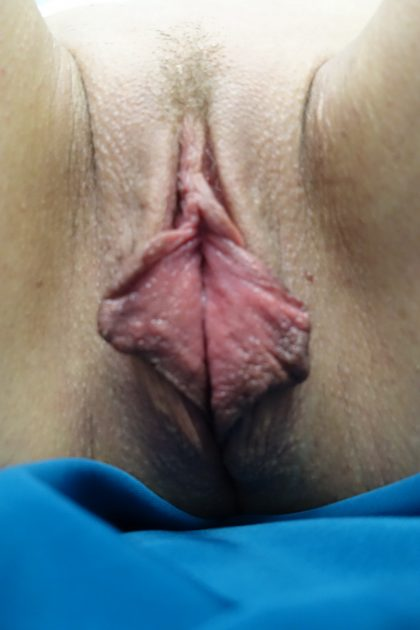 Labiaplasty Before & After Patient #15007