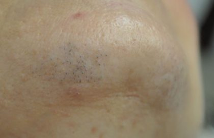 Laser Hair Removal Before & After Patient #14755