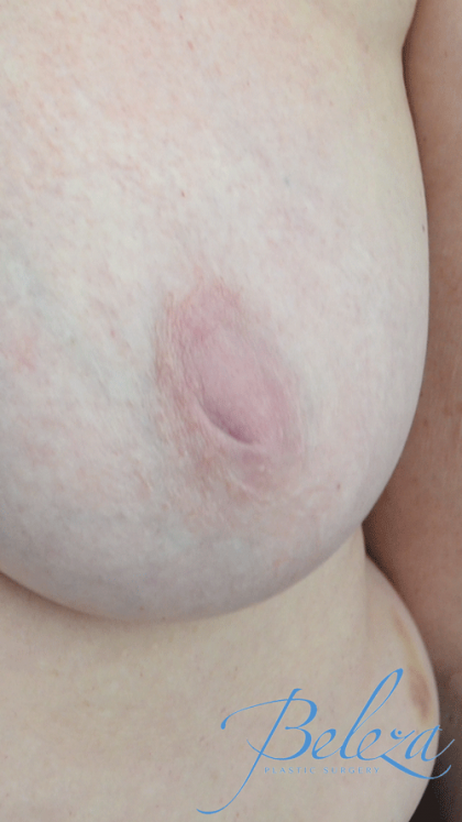 Nipple Inversion Before & After Patient #15252