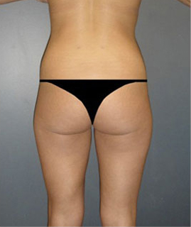Liposuction Before & After Patient #16161