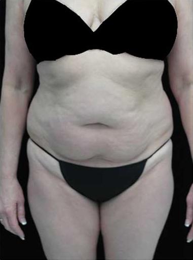 Lipoabdominoplasty Before & After Patient #15111