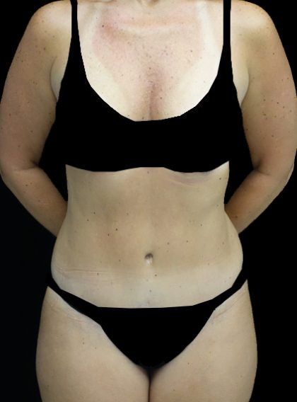 Lipoabdominoplasty Before & After Patient #15092