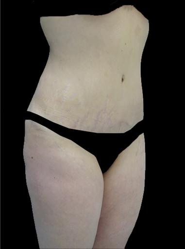 Lipoabdominoplasty Before & After Patient #15132