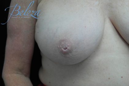 Nipple Inversion Before & After Patient #15255